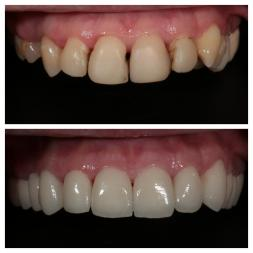 Before and After dental work