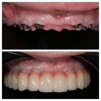 Before and After dental work - 2017