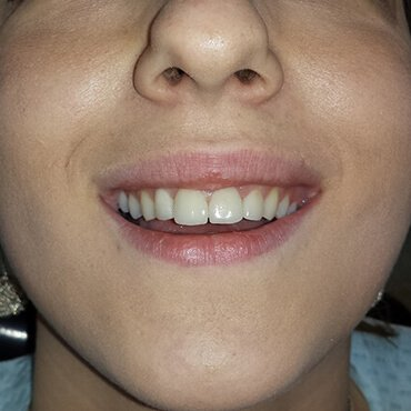 After dental work - Non-metal ceramic crowns