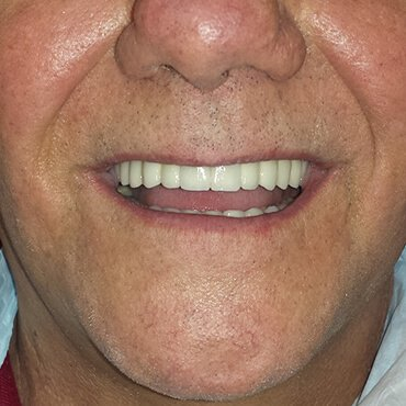 After dental work - Teeth and Implants