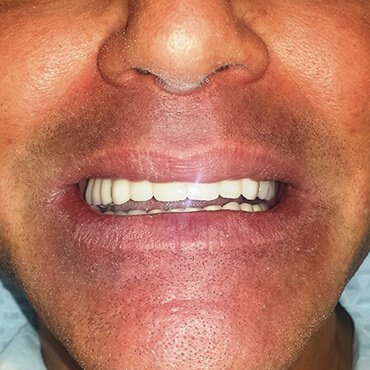After dental work - All on 6 (all on six implants)